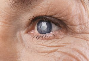 Recovering from Cataract Surgery in Long Island