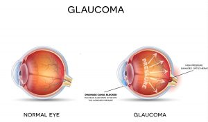 Glaucoma Treatment in Long Island, NY